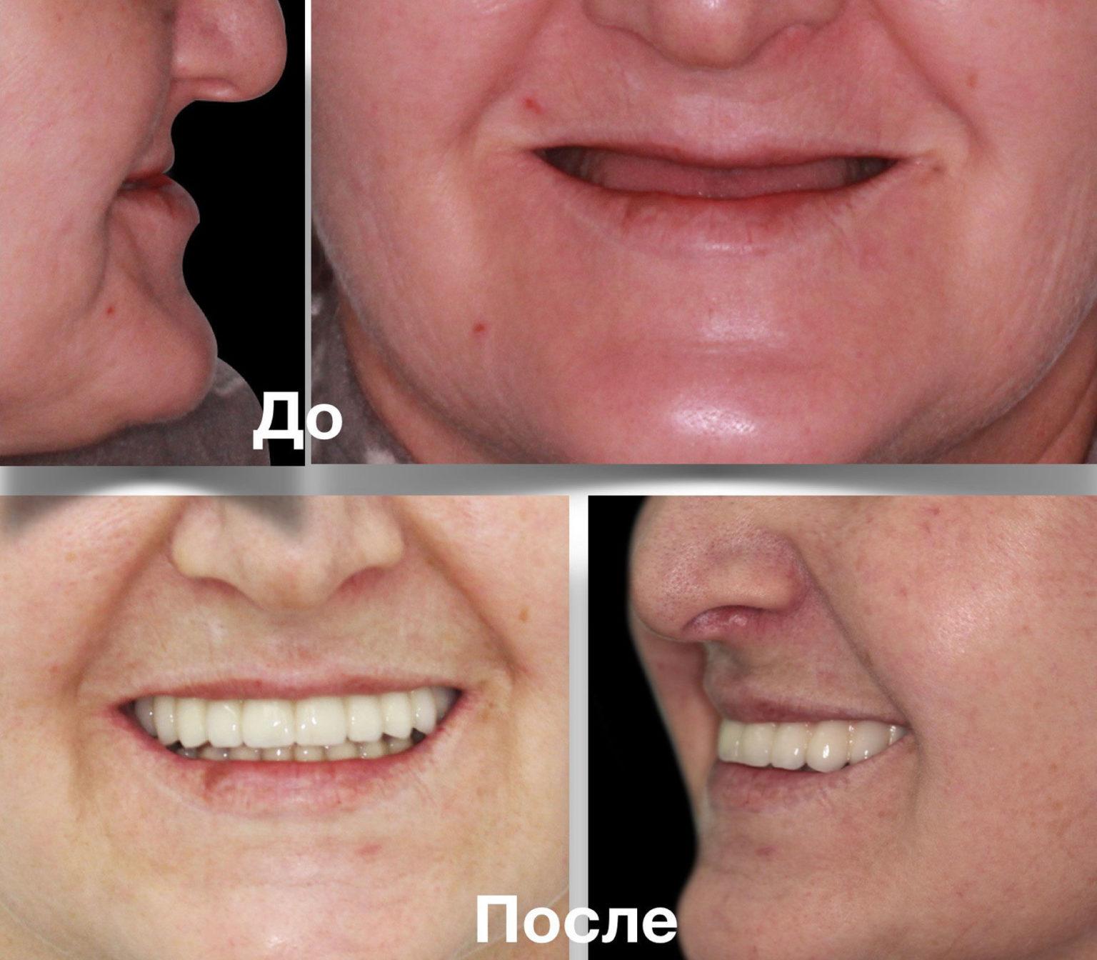 Атрофия челюсти до и после